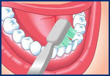 drawn-toothbrush-pressing-to-inside-of-bottom-teeth-to-get-into-gaps