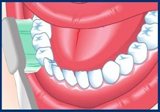 drawn-open-mouth-with-toothbrush-at-45-degree-angle-between-gums-and-teeth